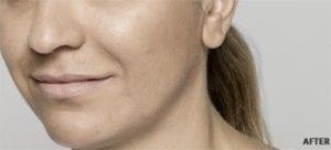 Restylane Lyft - After | | Look Better | Anti Aging | Uptown Medical Wellness Center
