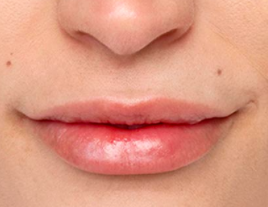 Restylane Silk Lips After