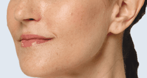 Restylane Lyft Volume and Smoothing in Face Before