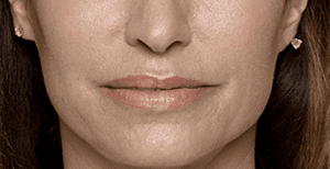 Restylane Volume and Smoothing in Face After