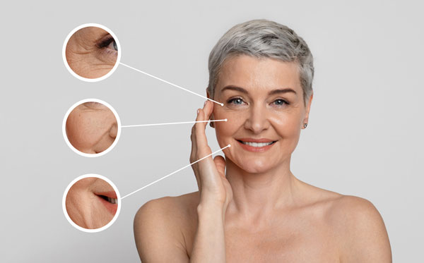 Dysport®is a prescribed injection that treats crow's feet, wrinkles, and frown lines around your eyebrows