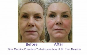 Success Story Gallery, McAllen Anti-Aging and Botox Treatments